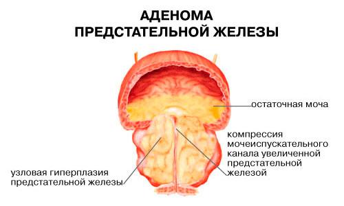 Простата снять боль