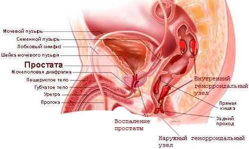 лечение простатита и воспаления