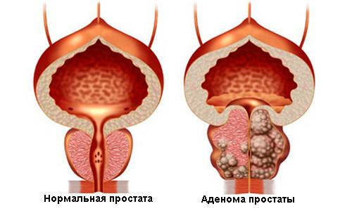 Анализ сока простаты макрофаги