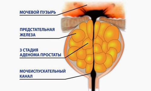 курск лечение простатита