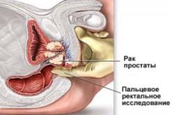 Пальцевое исследование простаты