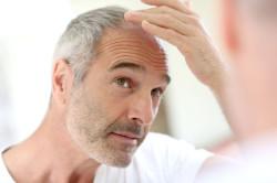 Уход за выпадающими волосами