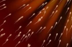 Оценка подвижности сперматозоидов