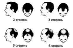 Степень облысения волос у мужчины