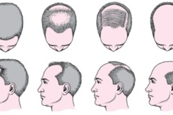 Облысение на различных участках головы