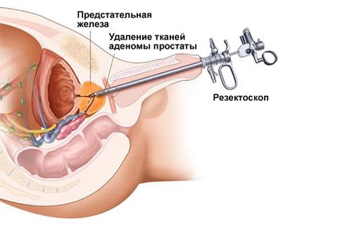 симптомы воспаленного простатита