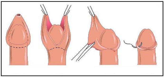 Схема обрезания у мужчин