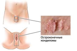 Кондиломы из-за вируса папилломы человека