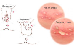 Водянистые пузырики на пенисе