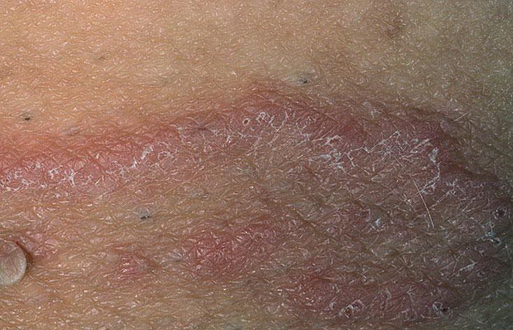 Воспаление в паху