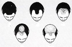 Формы выпадения волос