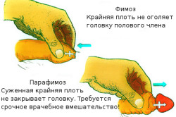 Фимоз и парафимоз