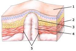 Ущемленная паховая грыжа: 1 - кожа; 2 - мышцы; 3 - грыжевой мешок; 4 - содержимое грыжевого мешка; 5 - грыжевые ворота