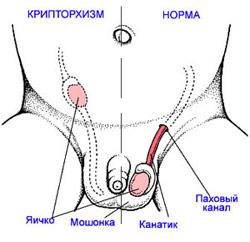 При этом заболевании половой член втянут в брюшину