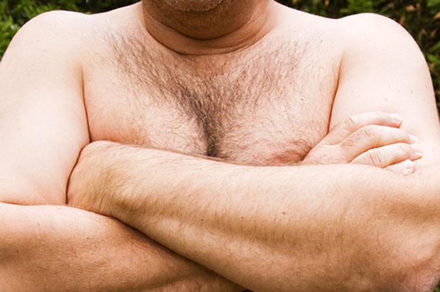 Мастопатия у мужчины