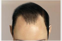 Облысение теменной части головы у мужчины