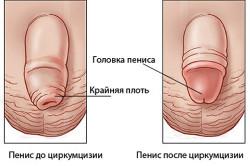 Циркуляция пениса