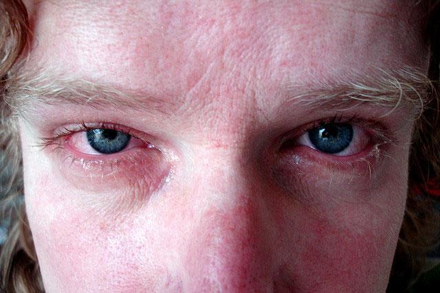 Гонококковое поражение глаз у мужчины