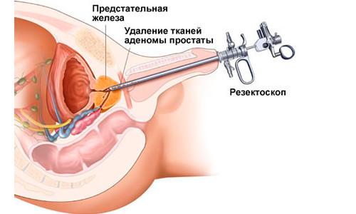 Схема операции ТУРП