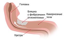 Фибропластическая индурация полового члена