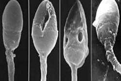 Флюрография