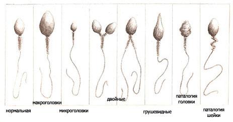 Сперматазоиды активные