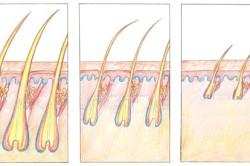 Истощение и выпадение волоса