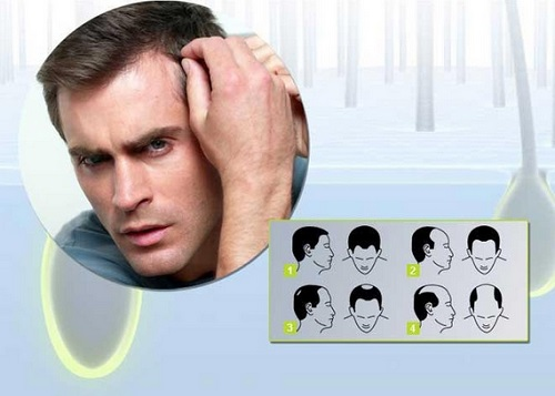 Степени выпадения волос у мужчин