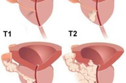 Рисунок 2. Классификация рака простаты, категория T