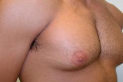 Гинекомастия у мужчины