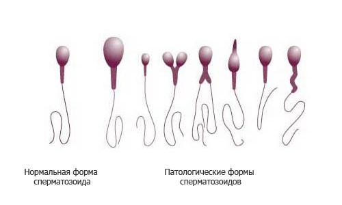 Виды сперматозоидов