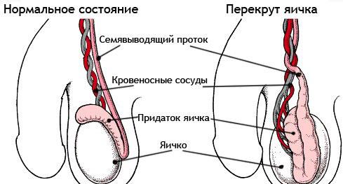 Перекрут яичка