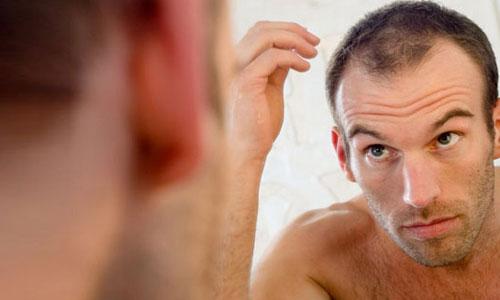 Раннее выпадение волос