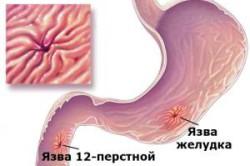 Влияние пива на желудок