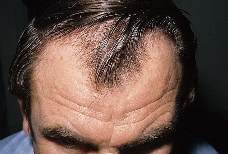 Выпадают волосы от шампуня чистая линия
