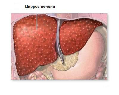 Цирроз печени как причина гинекомастии