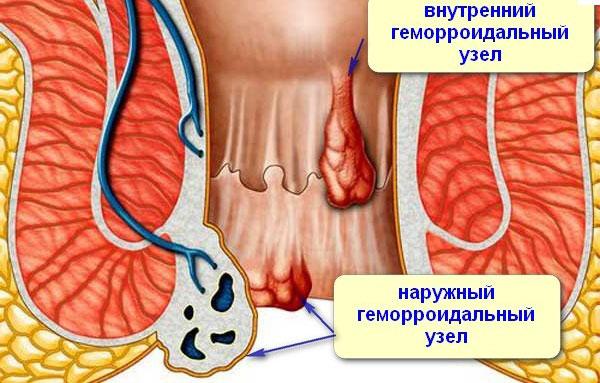 Геморроидальные узлы