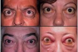 Проявление экзофтальма при гипертиреозе
