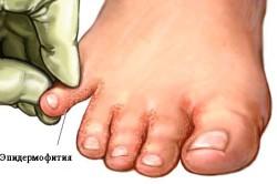 Эпидермофития - грибковое заболевание кожи