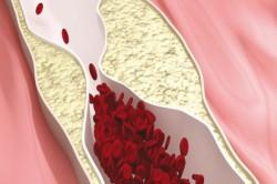 Нарушение притока крови