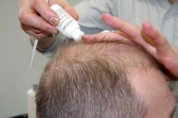 Нанесение лосьена от выпадения волос