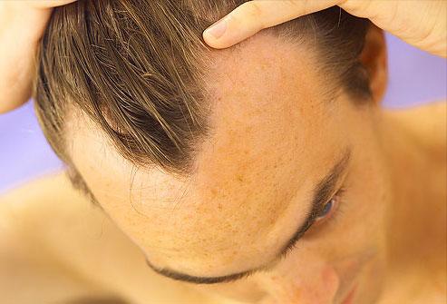 Ополаскиватель для волос против выпадения