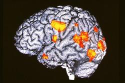 Мозг больного шизофренией