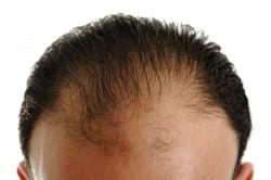 Сильная потеря волос