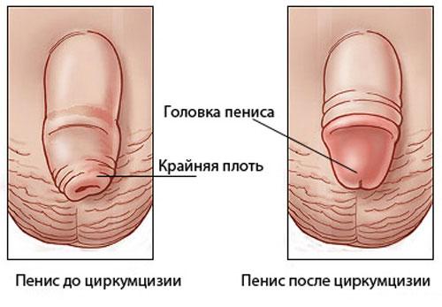 c04b2afa56cb Обрезание у мужчин: больно ли это или нет?