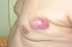 Опухоль молочной железы у мужчины