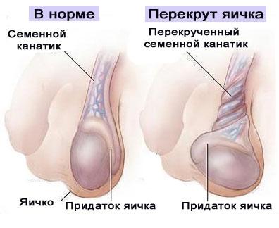 Какой препарат употреблять когда опухает яичко