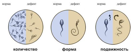 Показатели эякулята