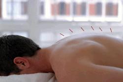 Иглоукалывание при лечении простатита