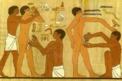 Религиозный ритуал обрезания